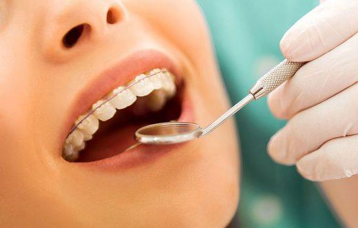 Pregled ustne votline zobozdravnik v ljubljani