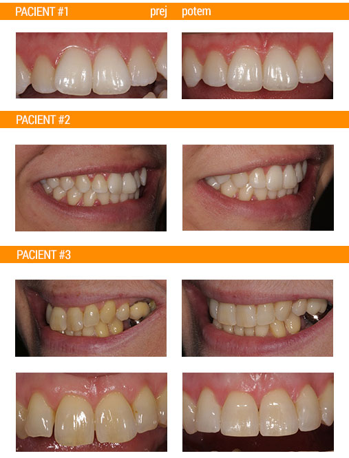 aparat-razporeditev zob ortodont