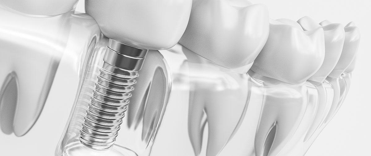 Zobni vsadki - implantati